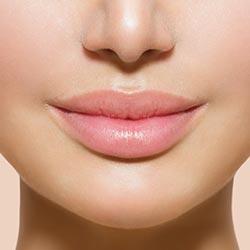 Depilación labios centro medico Magnolia